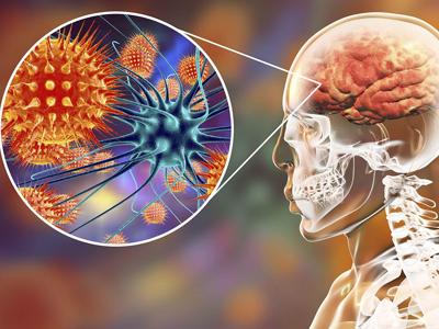 Afectacione-de-la-meningitis-en-la-salud